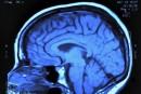 L'activité physique après une commotion cérébrale serait bénéfique