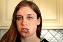 L'étudiante blessée envisage une poursuite contre la Ville de Québec