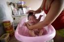 Floride:un premier cas de microcéphalie lié au Zika
