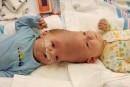 Un premier week-end crucial pour les jumeaux siamois séparés