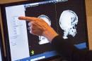 Traitement de la migraine: le Québec en retard