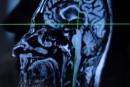 Des problèmes d'odorat pourraient mettre en garde contre la maladie d'Alzheimer