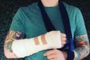 Ed Sheeran blessé au bras lors d'un accident de vélo