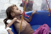 Yemen Pocket Of Famine