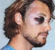 Gabriel Aubry après son passage à tabac.... (Photo: AP) - image 2.0