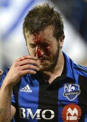 Jeb Brovsky a été blessé au nez en... (Photo Bernard Brault, La Presse) - image 2.0