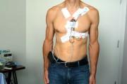 Une installation typique d'un moniteur Holter à l'Institut... - image 1.0