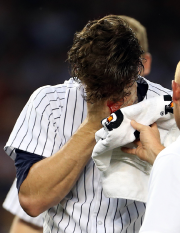 Le partant des Yankees Brian Mitchell a été... (Photo Adam Hunger, USA Today) - image 2.0