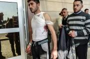 Un Syrien blessé par un bombardement a été... (PHOTO AFP) - image 2.0
