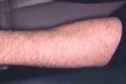 Détatouage professionnel au laser QS-YAG, après huit traitements.... (PHOTO FOURNIE LE DR DANIEL BAROLET) - image 10.1