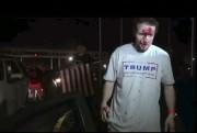 Un partisan de Donald Trump après le combat.... (AP) - image 3.0