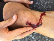 La blessure au genou de Guillaume Boivin... (photo fournie par guillaume boivin) - image 2.0