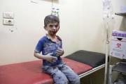 Un enfant syrien blessé samedi est soigné à... (AFP, Karam Al-Masri) - image 2.0