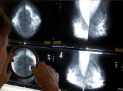 Le cancer du sein est celui qui est... (Archives La Presse Canadienne, Damian Dovarganes) - image 1.1