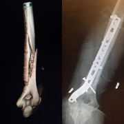 Lindsey Vonna publié les radiographies de son bras... (Photo tirée du compte Instagram de Lindsey Vonn) - image 1.0