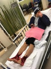 Sam Kanizay a été conduit à l'hôpital, où... (PHOTO AFP/ COURTOISIE JARROD KANIZAY) - image 1.0