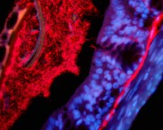 En caractérisant le microbiote intestinal de patients-l'ensemble des... (PHOTO THIERRY MEYLHEUC, FOURNIE PAR L'INRA) - image 1.0