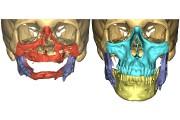 Planification 3D de la transplantation faciale.... (Photo fournie par Daniel Borsuk) - image 7.0