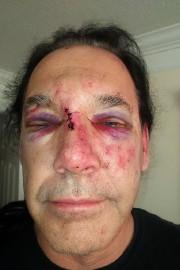 Guillaume Carle a fourni cette photo après l'agression.... (Photo fournie par lui-même) - image 2.0