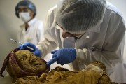 Le docteur Philippe Charlier pointe la fistule au... (Photo RODRIGO BUENDIA, AFP) - image 2.0