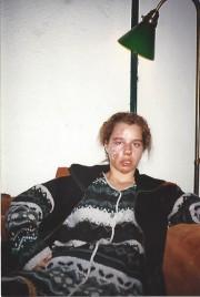 Les blessures de NancyLeblond remontent au 18décembre1995, lorsqu'elle... (PHOTO FOURNIE PARNANCYLEBLOND) - image 2.0