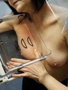 Cancer du sein : réduire le risque d'une seconde tumeur 37980-femme-subit-mammographie