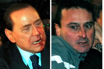 Berlusconi après avoir été agressé avec une statuette... (Photo AP/Rai)