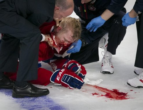 Lars Eller est sorti sur civière après un violent contact avec Eric Gryba (Photo André Pichette, La Presse)