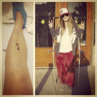 «Le jour de mon intervention (NDLR: en août à London), ils ont marqué à l'hôpital ma jambe gauche pour l'opération. J'étais dans un bon état d'esprit après l'opération. Mon père et moi sommes allés nous payer une crème glacée (sourire).» ()