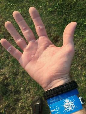 La plupart des participants ont eu de petits bobos. La main la plus abîmée de votre humble serviteur à l'arrivée à Québec. (Jean-Sébastien Massicotte, collaboration spéciale)