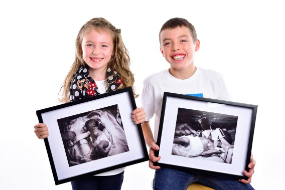 Florence, 6 ans, et son frère Xavier, 11 ans, sont nés respectivement à 35 et 31 semaines. ()