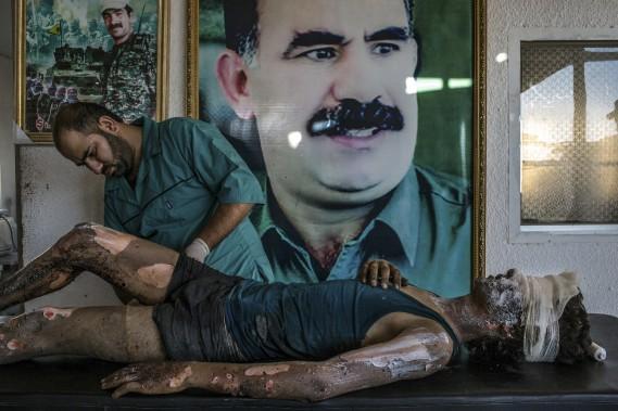 Premier Prix Nouvelles générales: «Un combattant de l'État islamique soigné dans un hôpital kurde, de Mauricio Lima du New York Times, représentant un médecin kurde qui soigne un combattant de 16 ans sévèrement brûlé. (Fournie par World Press Photo)