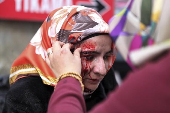 La police a violemment mis fin au rassemblement à Istanbul de 500 personnes devant le siège du plus grand quotidien de Turquie, hostile au président, qui avait été mis en tutelle la veille. (AFP, Ozan Koze)