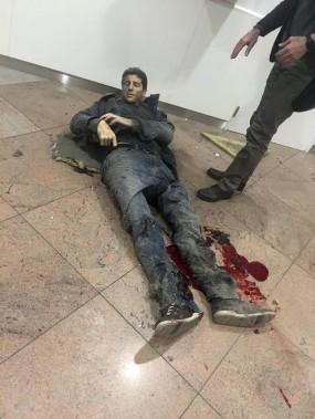 Un blessé dans l'explosion à l'aéroport de Bruxelles. (Ketevan Kardava/ Georgian Public Broadcaster via AP)