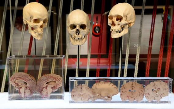 Une exposition sur le cerveau ne sert pas qu'à montrer des photos de matière grise, mais aussi à voir la chose «pour vrai». (Le Soleil, Erick Labbé)