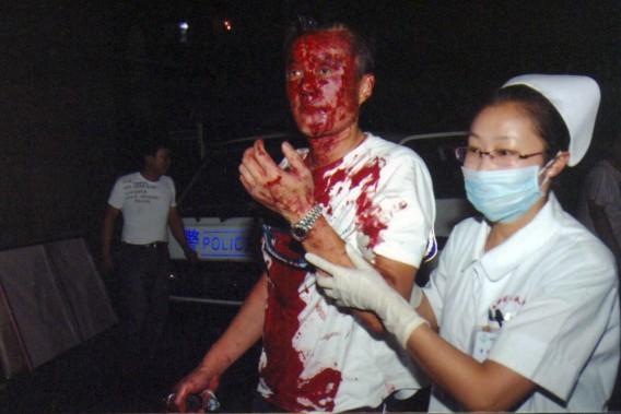 Un homme blessé est conduit vers l'urgence par une infirmière après une nuit d'émeutes à Urumqi le 5 décembre 2009. (AP)