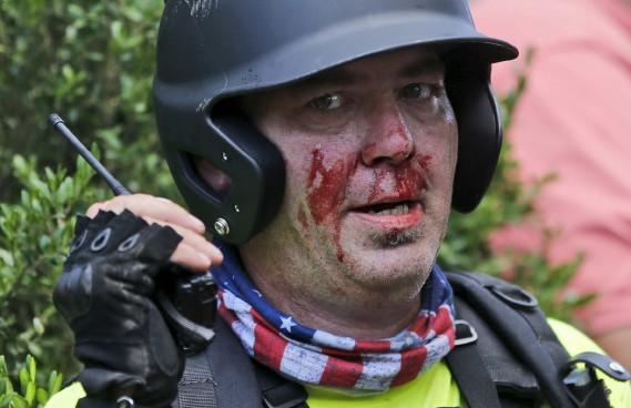 Un manifestant suprémaciste est blessé après des heurts avec des contre-manifestants. (AP, Steve Helber)