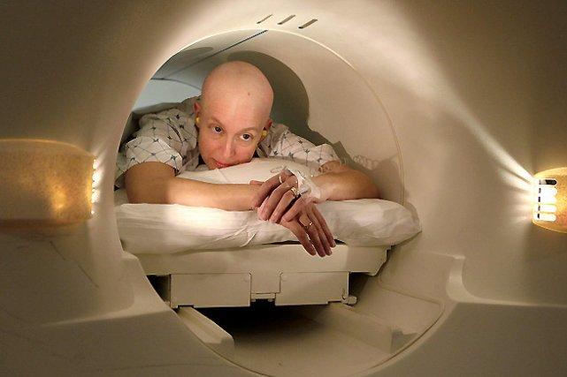 Conséquence de la chimiothérapie délivrée aux malades du cancer, la chute des... (Photo: archives PC)