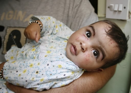 Le bébé miraculé... (Photo: Reuters)