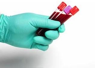 Le pr l vement sanguin de m lissa bordeleau rejet guy - Prelevement sanguin sur chambre implantable ...