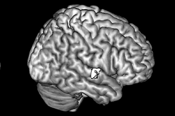 Une étude suggère que les régions du cerveau...