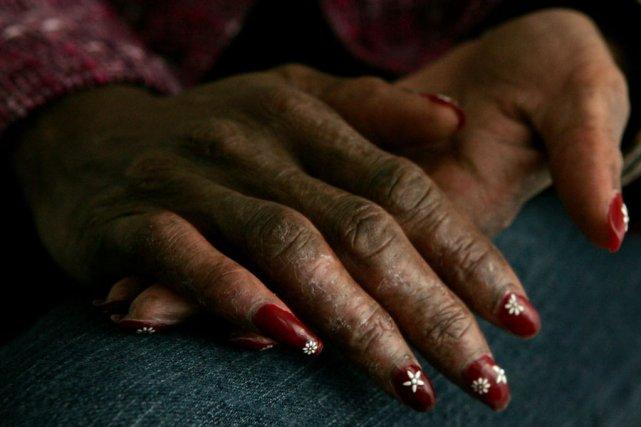 Le lupus se manifeste généralement par des douleurs... (Photo: Archives AP)