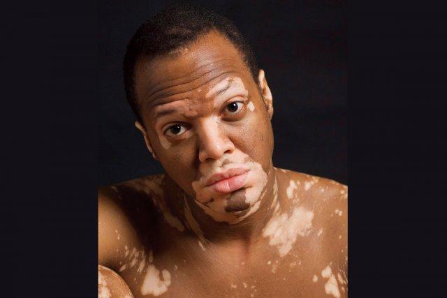 Les moyens de la lutte avec la pigmentation sur la personne