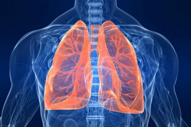 La légionellose se caractérise par une infection pulmonaire... (Photo Relaxnews)