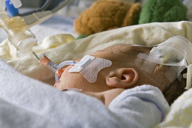 Selon le Dr Stephen Kingsmore, 5% des nouveau-nés... (Photo: Patrick Sanfaçon, Archives La Presse)