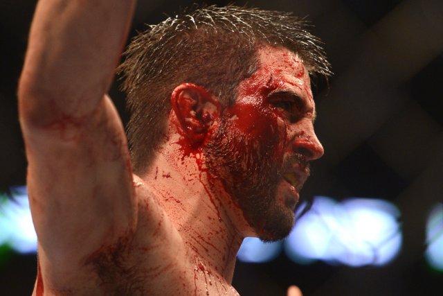 Carlos Condit avait le visage en sang après... (Photo: Bernard Brault, La Presse)