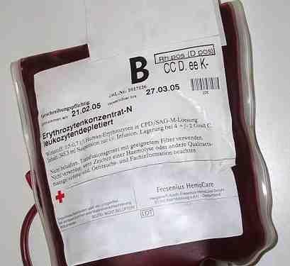 La situation dans les blocs opératoires des hôpitaux... ((Archives))