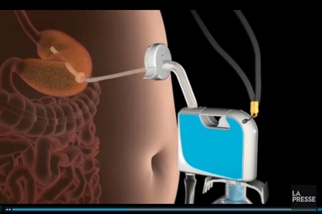 Un système de pompe d'estomac visant la perte... (PHOTO TIRÉE DU SITE www.aspirebariatrics.com)