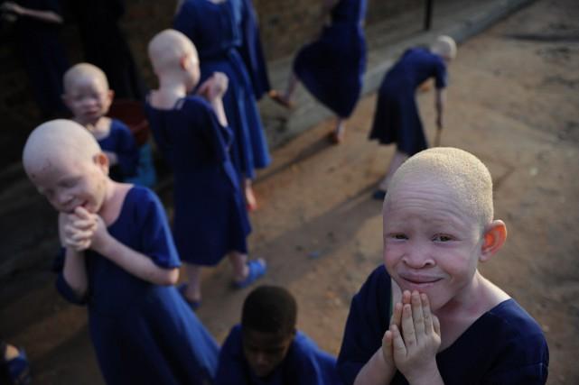 Les enfants albinos sont victimes de discrimination dans... (PHOTO ARCHIVES AFP)