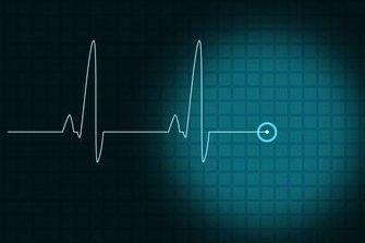 Avoir un accident vasculaire cérébral (AVC) dans la vingtaine augmente de 6 à...